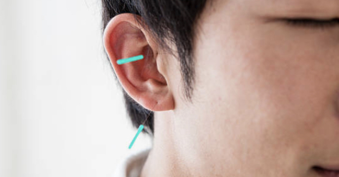 Available in August at OSCA:  Student auricular acupuncture clinic! image